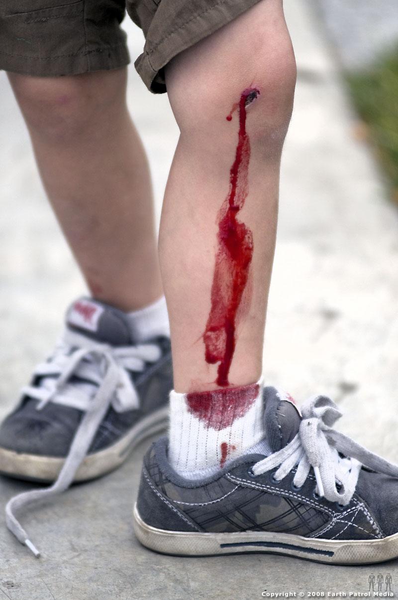 Jack - Knee Close-Up @ Battle Ground